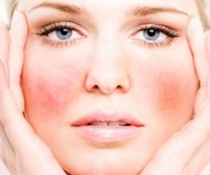 pelle secca e sensibile