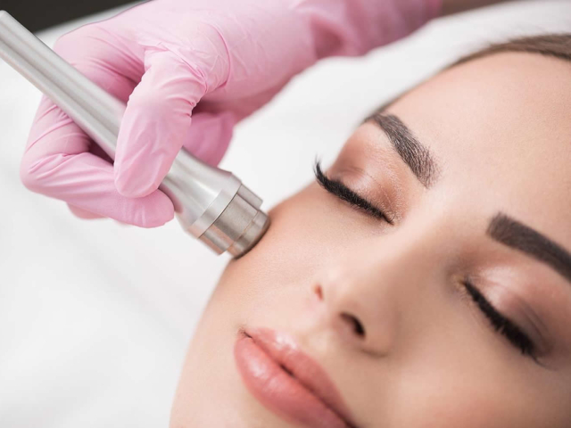 ringiovanimento viso skin peel